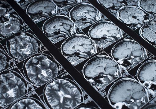 Brain & Spinal Cord Injury
